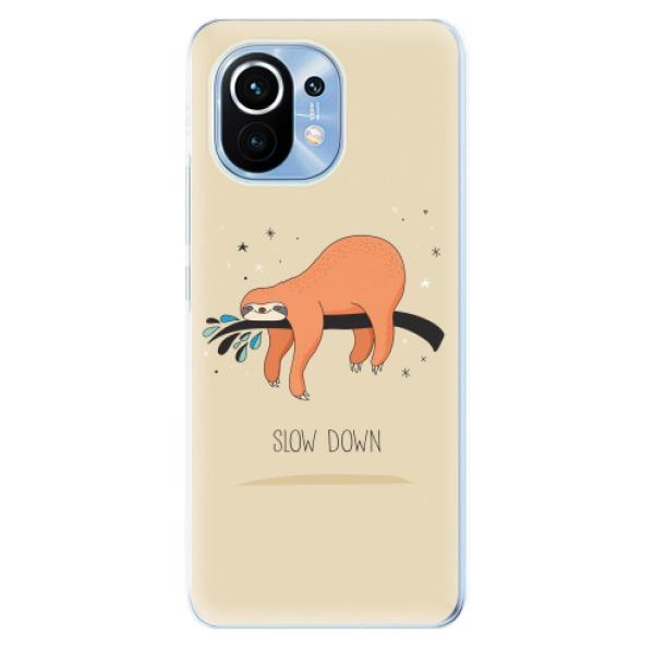 Odolné silikonové pouzdro iSaprio - Slow Down - Xiaomi Mi 11